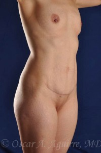 Postop Vaser Liposuction of the upper and lower abdomen, anterior hips and mons as well as a mini Abdominoplasty and revision of her umbilicus