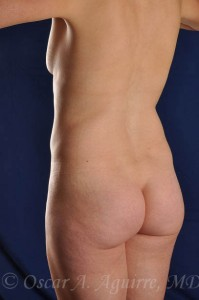 Preop Vaser Liposuction of the upper and lower abdomen, anterior hips and mons as well as a mini Abdominoplasty and revision of her umbilicus