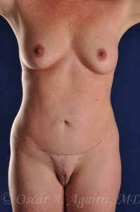 Postop Vaser Lipo-sculpture of the upper and lower abdomen, mons, hips, flanks, and a Mini Tummy-Tuck