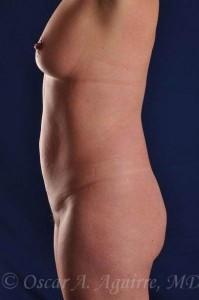 Preop Vaser Lipo-sculpture of the upper and lower abdomen, mons, hips, flanks, and a Mini Tummy-Tuck