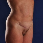 Postop Liposuction of the Upper and Lower Abdomen, Mons, Hips, Lower Back and a Mini Tummy Tuck