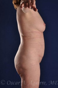 Postop Vaser Liposculpture of the upper and lower abdomen, mons, flanks and mid-back as well as a mini tummy tuck
