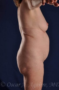 Preop Vaser Liposculpture of the upper and lower abdomen, mons, flanks and mid-back as well as a mini tummy tuck