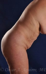 Postop Abdominoplasty and Vaser Liposuction of the upper and lower abdomen, flanks, anterior hips and mons