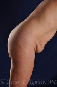 Preop Abdominoplasty and Vaser Liposuction of the upper and lower abdomen, flanks, anterior hips and mons