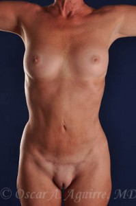 Postup Vaser Liposculpture of the upper and lower abdomen, anterior hips, flanks and mons with a Mini Tummy Tuck