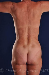 Postop Vaser Liposculpture of the upper and lower abdomen, anterior hips, flanks and mons with a Mini Tummy Tuck