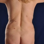 Postop Vaser Liposuction of the upper and lower abdomen, hips and flanks with a mini tummy tuck to excise the excess skin