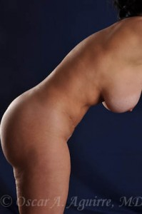 Postop Vaginoplasty and Labia Major Reduction, Vaser Liposuction of the upper and lower abdomen, pubic mons, upper and lower back, bra fat, axilla, arms, inner and outer thighs