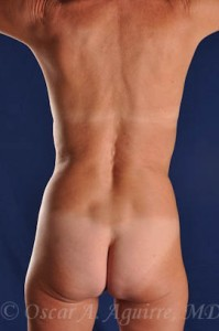 Preop Vaser Liposculpture of the upper and lower abdomen, anterior hips, flanks and mons with a Mini Tummy Tuck