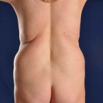 Preop Vaser Liposuction of the upper and lower abdomen, hips and flanks with a mini tummy tuck to excise the excess skin