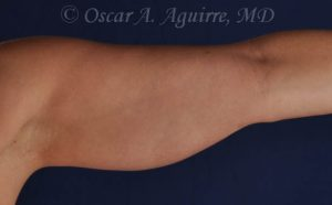 CoolSculpting treatments to Upper and Lower Abdomen, Flanks, Bra Fat, and Arms