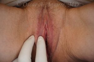 Postop Labia Majora reduction and Vaginoplasty
