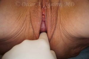 Preop Labia Majora reduction and Vaginoplasty